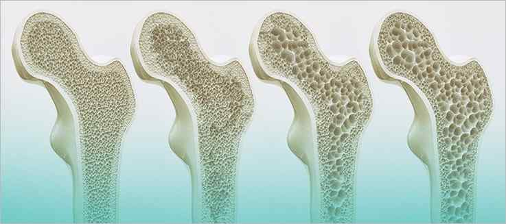 A Closer Look at Bone Density Changes During Menopause