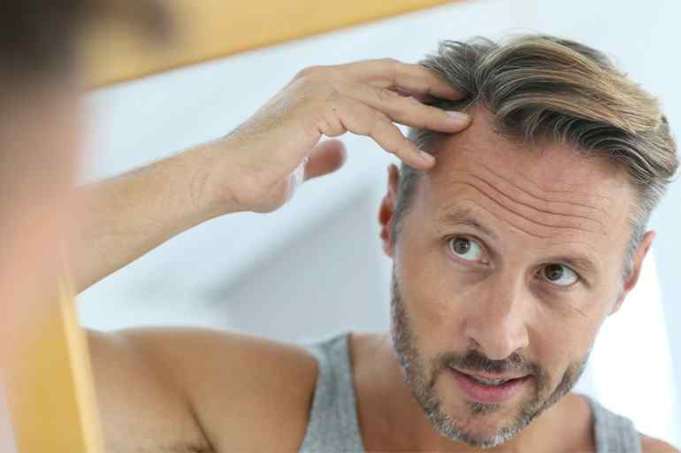 Androgenic Alopecia: What You Need to Know (Part 1)