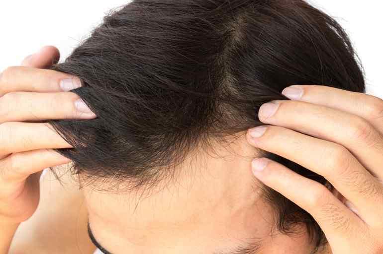 Androgenic Alopecia: Treatment Options (Part 2)