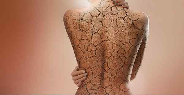 Treatment of psoriasis using Low Dose Naltrexone and Vitamin B12